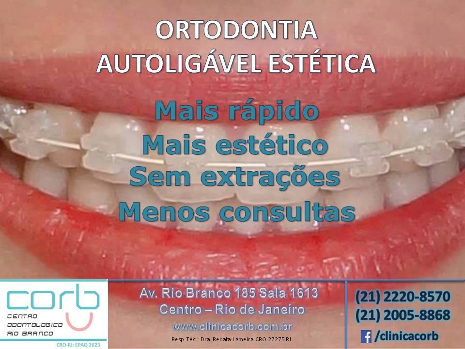 ortodontia autoligável estética