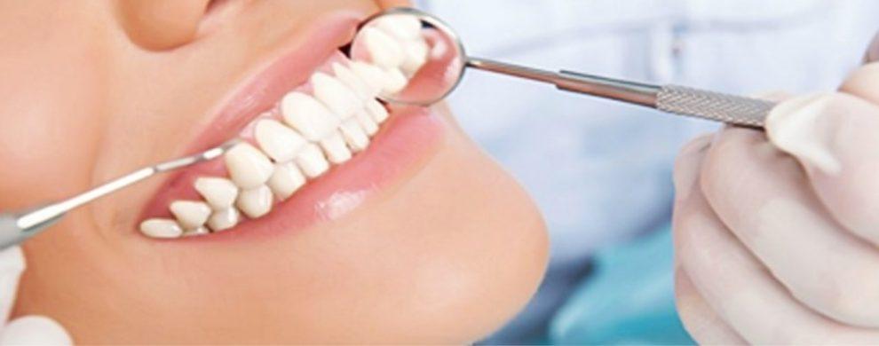 periodontite como tratar e quais os sintomas