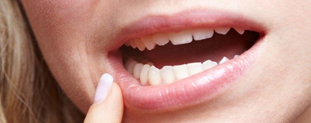 quando fazer a remoção do dente do siso